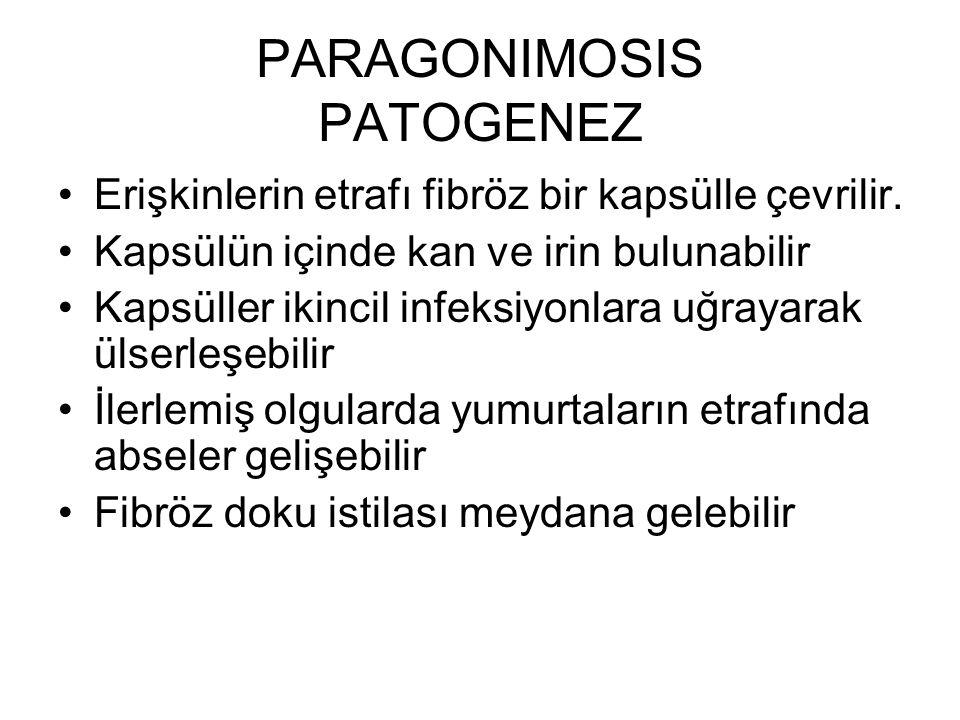 PARAGONIMOSIS PATOGENEZ