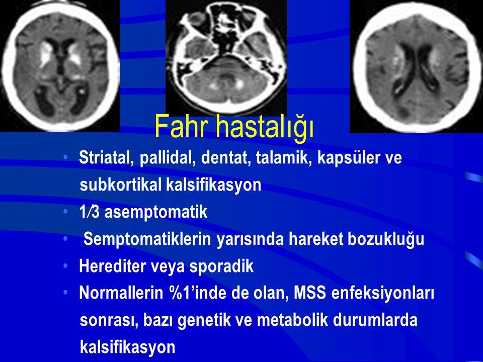 Fahr hastalığı Striatal, pallidal, dentat, talamik, kapsüler ve