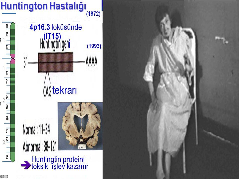 i (1993) Huntington Hastalığı (IT15) tekrarı  4p16.3 loküsünde