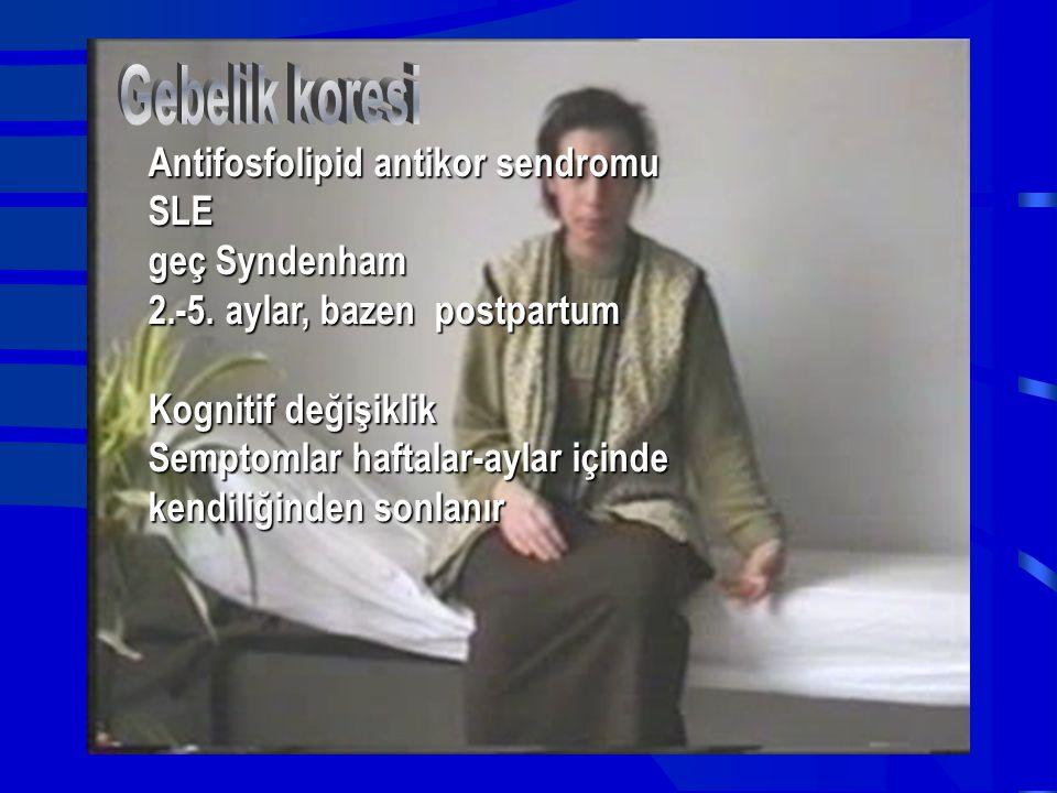 Gebelik koresi Antifosfolipid antikor sendromu SLE geç Syndenham