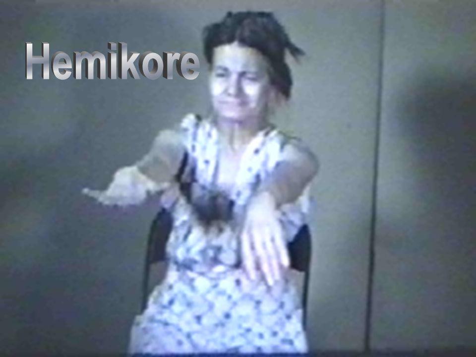 Hemikore