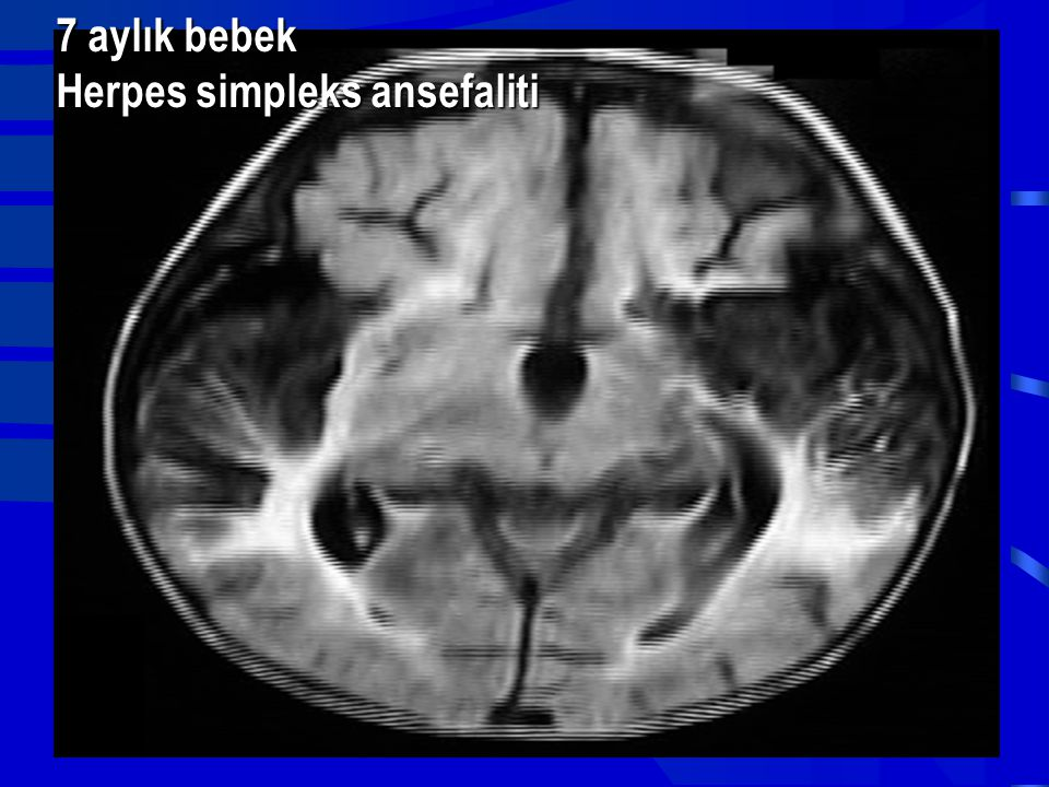 7 aylık bebek Herpes simpleks ansefaliti
