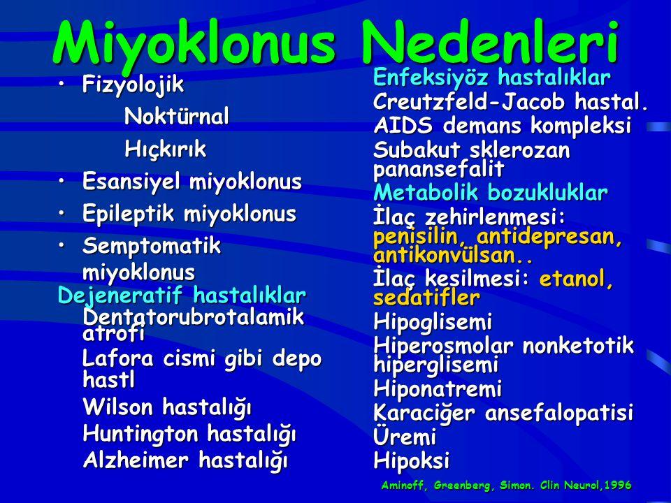 Miyoklonus Nedenleri Fizyolojik Noktürnal Hıçkırık