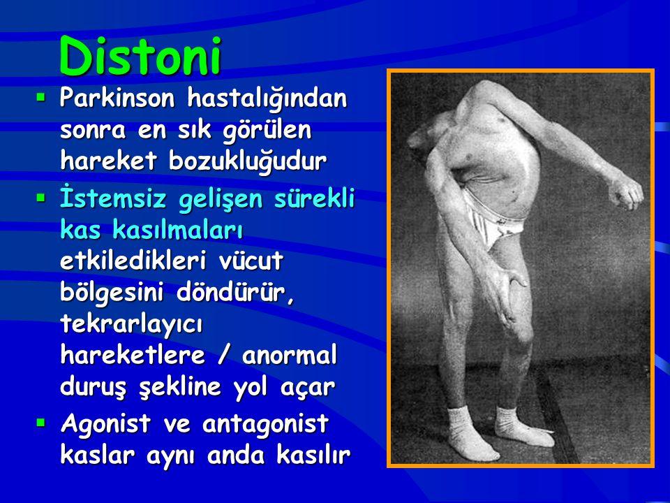 Distoni Parkinson hastalığından sonra en sık görülen hareket bozukluğudur.