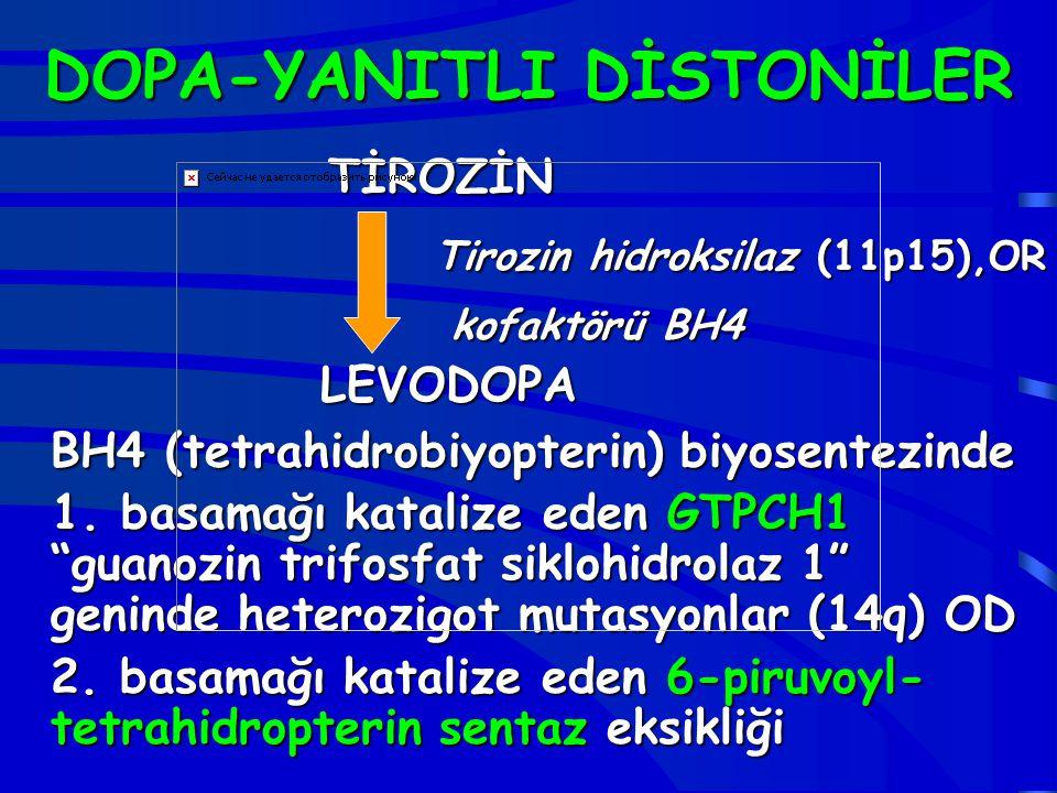 DOPA-YANITLI DİSTONİLER