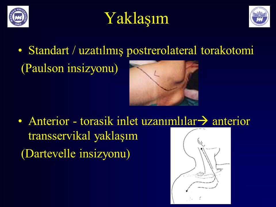 Yaklaşım Standart / uzatılmış postrerolateral torakotomi