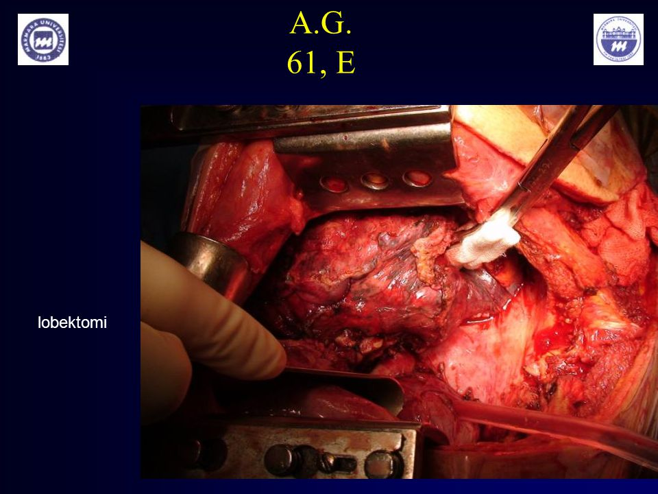 A.G. 61, E lobektomi