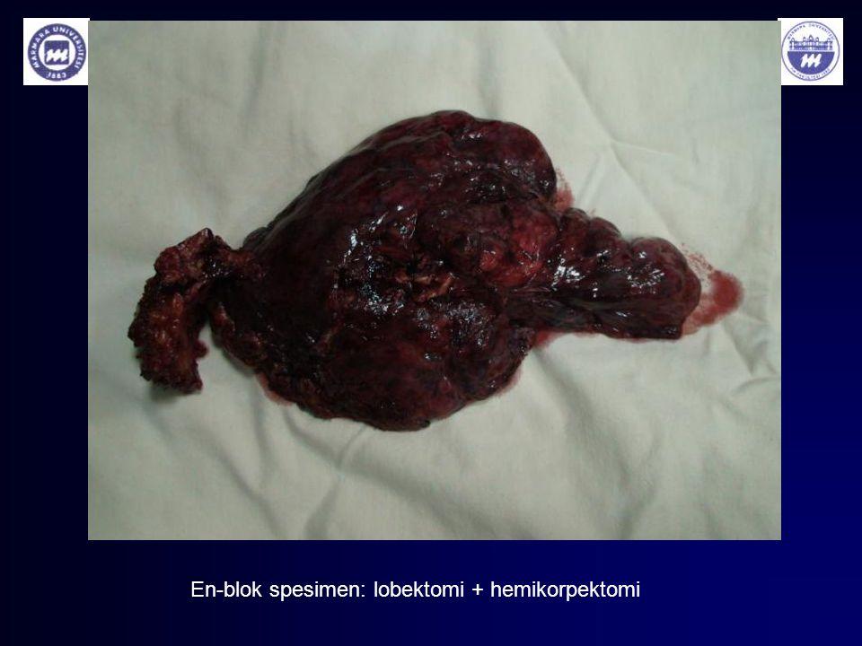 En-blok spesimen: lobektomi + hemikorpektomi