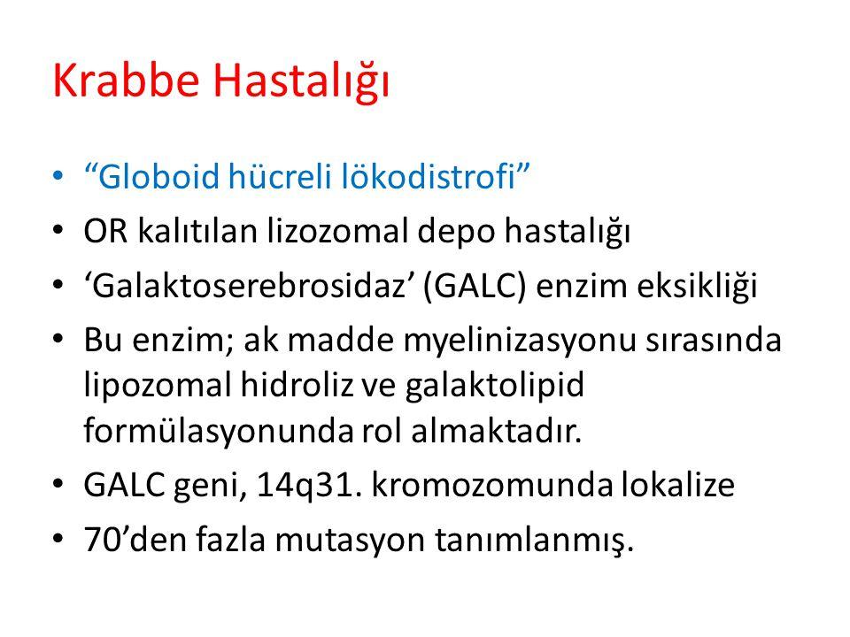 Krabbe Hastalığı Globoid hücreli lökodistrofi