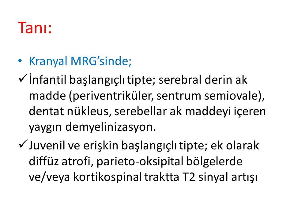 Tanı: Kranyal MRG'sinde;