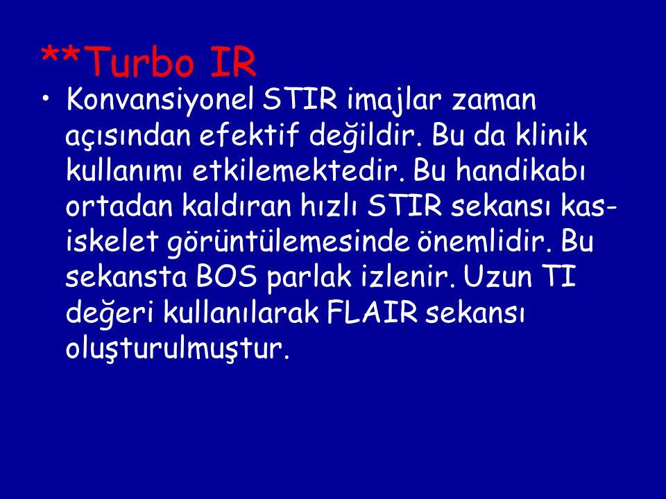 **Turbo IR