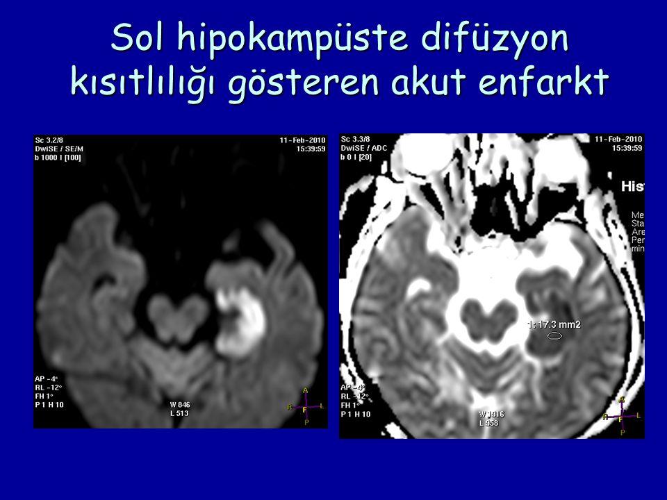 Sol hipokampüste difüzyon kısıtlılığı gösteren akut enfarkt