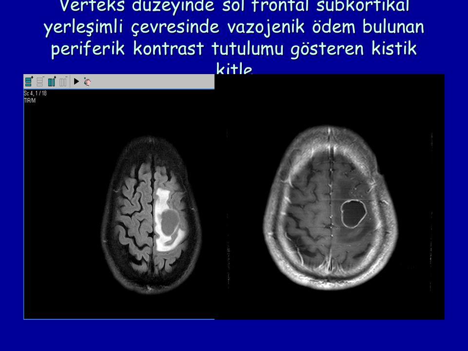 Verteks düzeyinde sol frontal subkortikal yerleşimli çevresinde vazojenik ödem bulunan periferik kontrast tutulumu gösteren kistik kitle
