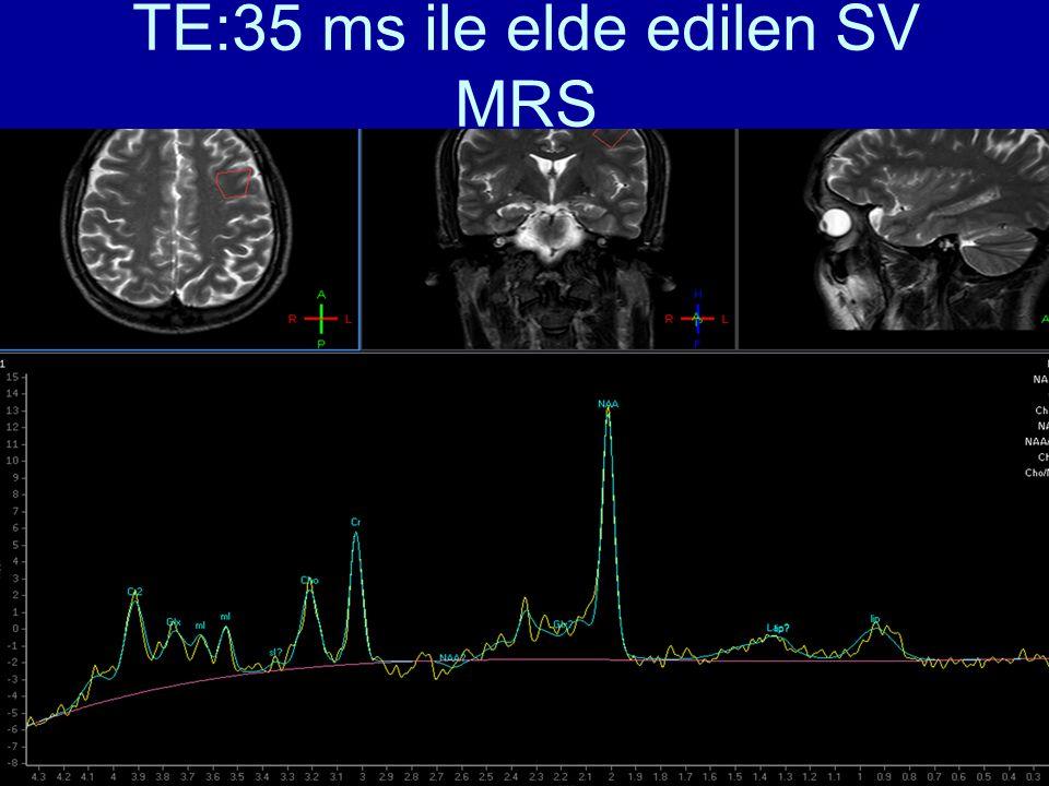 TE:35 ms ile elde edilen SV MRS