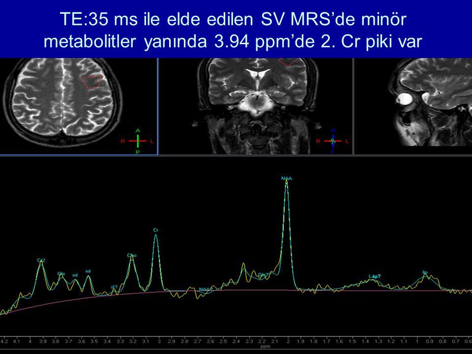 TE:35 ms ile elde edilen SV MRS'de minör metabolitler yanında 3