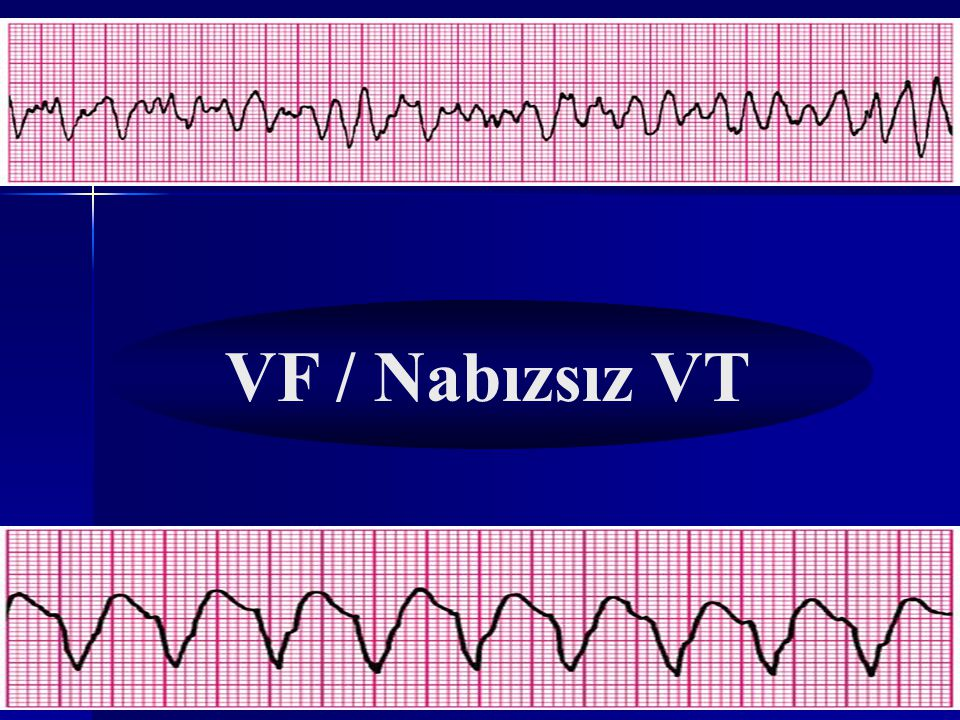 VF / Nabızsız VT Nabız YOK!!!! NABIZ VAR MI