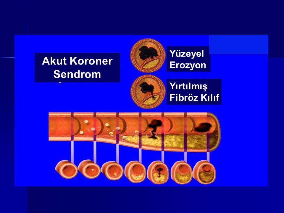 Yüzeyel Erozyon Akut Koroner Sendrom Yırtılmış Fibröz Kılıf