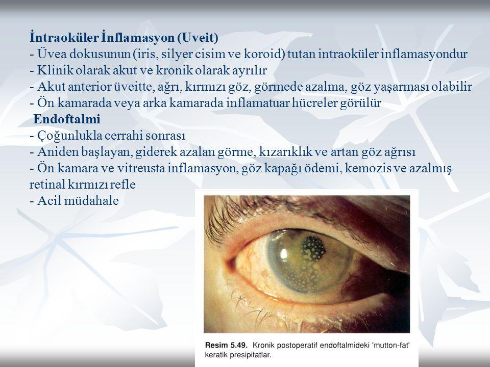 İntraoküler İnflamasyon (Uveit) - Üvea dokusunun (iris, silyer cisim ve koroid) tutan intraoküler inflamasyondur - Klinik olarak akut ve kronik olarak ayrılır - Akut anterior üveitte, ağrı, kırmızı göz, görmede azalma, göz yaşarması olabilir - Ön kamarada veya arka kamarada inflamatuar hücreler görülür Endoftalmi - Çoğunlukla cerrahi sonrası - Aniden başlayan, giderek azalan görme, kızarıklık ve artan göz ağrısı - Ön kamara ve vitreusta inflamasyon, göz kapağı ödemi, kemozis ve azalmış retinal kırmızı refle - Acil müdahale
