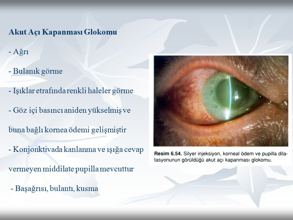 Akut Açı Kapanması Glokomu - Ağrı - Bulanık görme - Işıklar etrafında renkli haleler görme - Göz içi basıncı aniden yükselmiş ve buna bağlı kornea ödemi gelişmiştir - Konjonktivada kanlanma ve ışığa cevap vermeyen middilate pupilla mevcuttur - Başağrısı, bulantı, kusma
