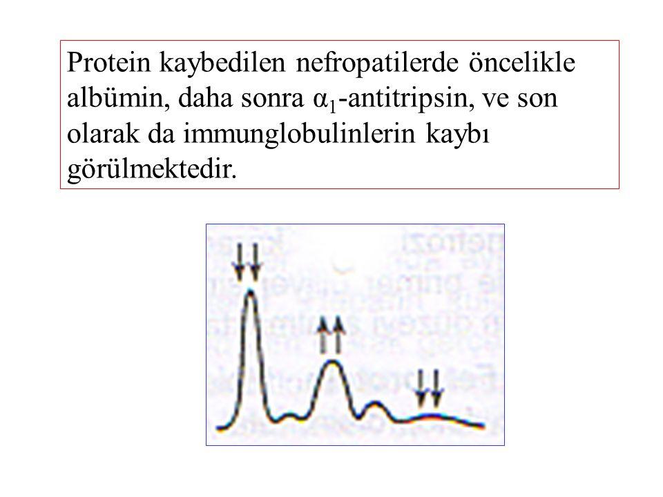 Protein kaybedilen nefropatilerde öncelikle albümin, daha sonra α1-antitripsin, ve son olarak da immunglobulinlerin kaybı görülmektedir.