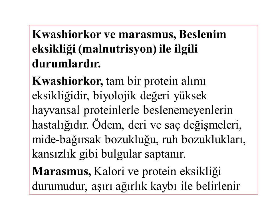 Kwashiorkor ve marasmus, Beslenim eksikliği (malnutrisyon) ile ilgili durumlardır.