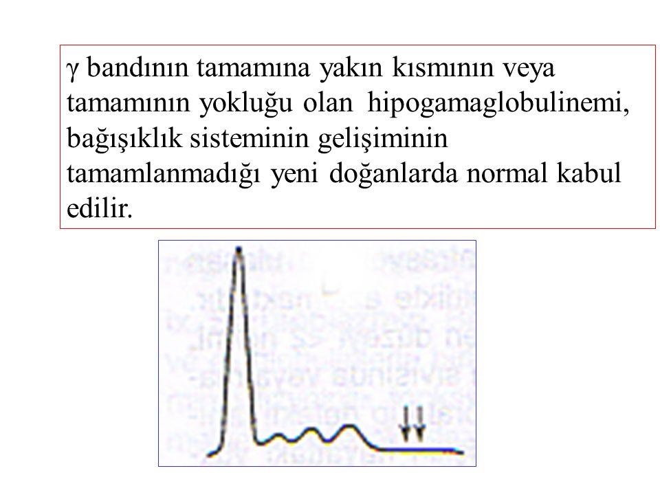 γ bandının tamamına yakın kısmının veya tamamının yokluğu olan hipogamaglobulinemi, bağışıklık sisteminin gelişiminin tamamlanmadığı yeni doğanlarda normal kabul edilir.