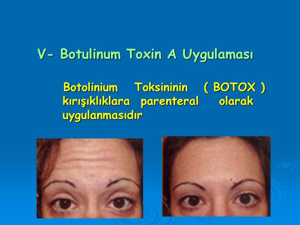 V- Botulinum Toxin A Uygulaması