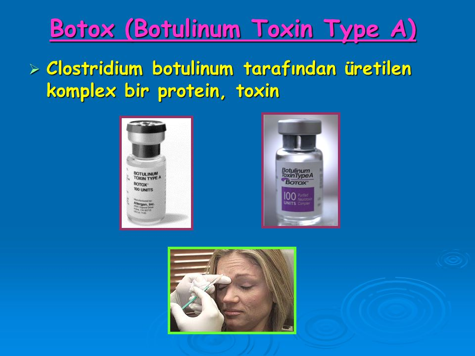 Botox (Botulinum Toxin Type A)