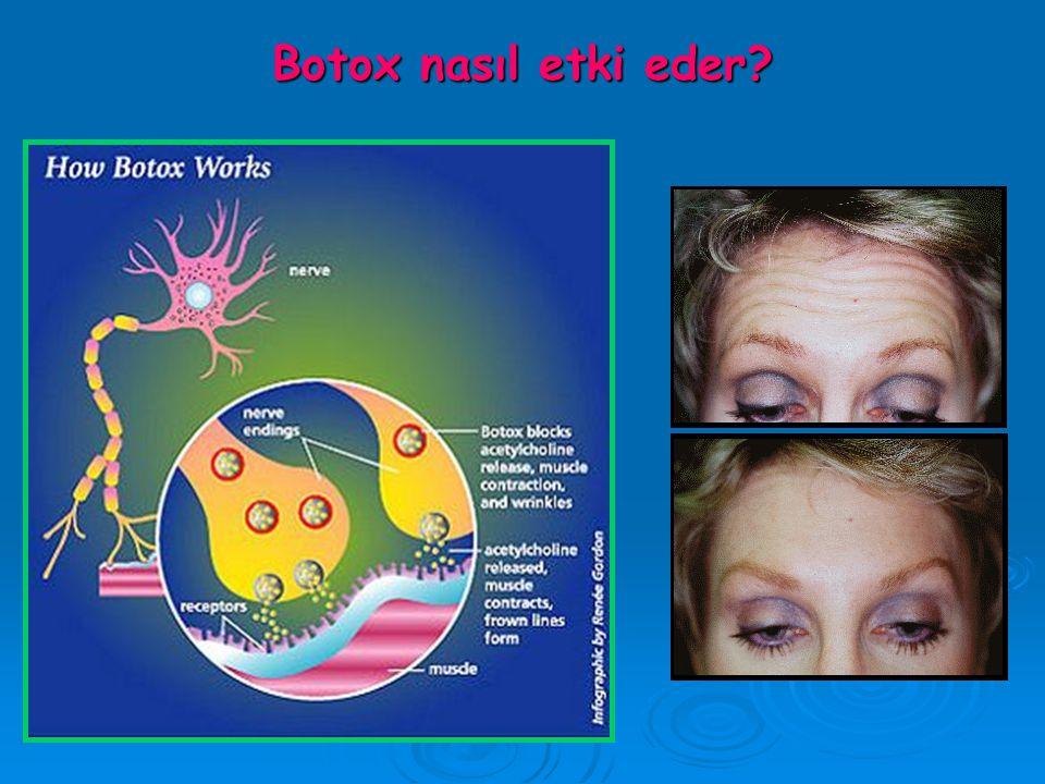 Botox nasıl etki eder