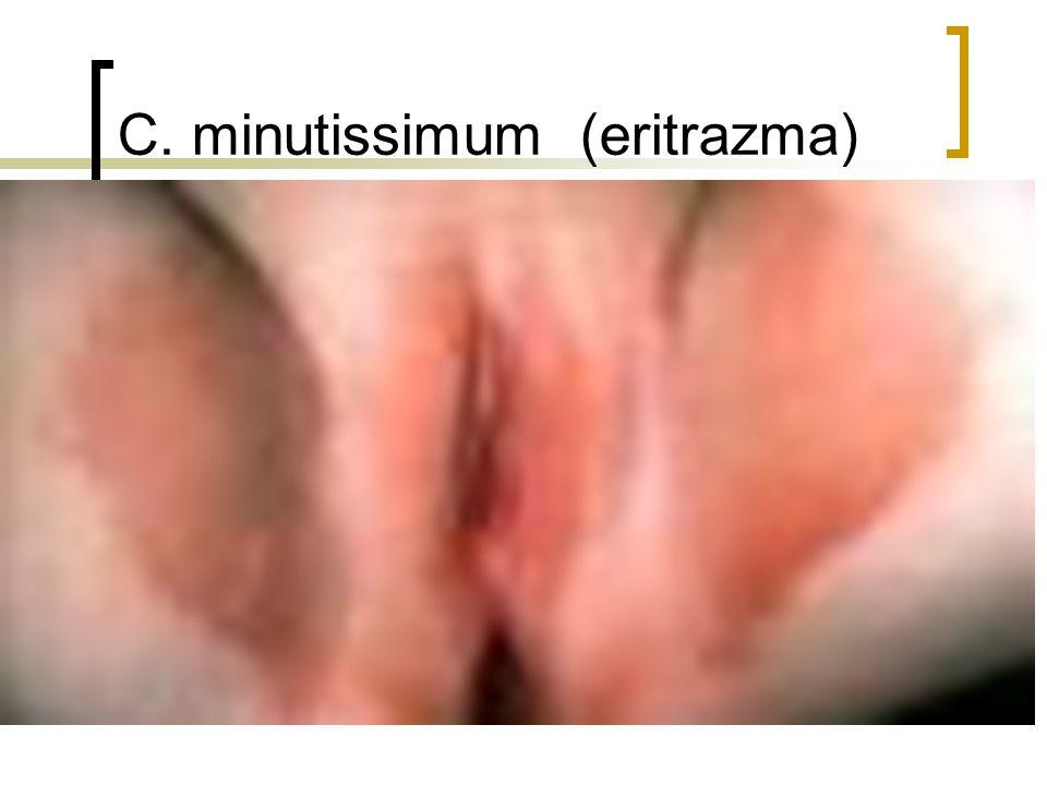 C. minutissimum (eritrazma)