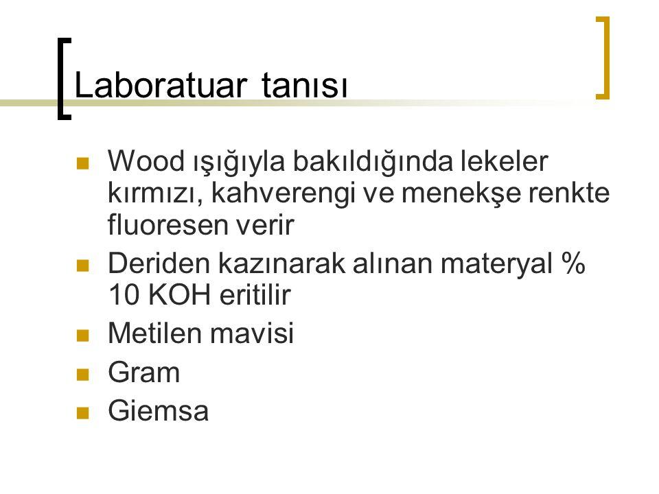Laboratuar tanısı Wood ışığıyla bakıldığında lekeler kırmızı, kahverengi ve menekşe renkte fluoresen verir.