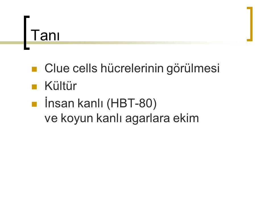Tanı Clue cells hücrelerinin görülmesi Kültür