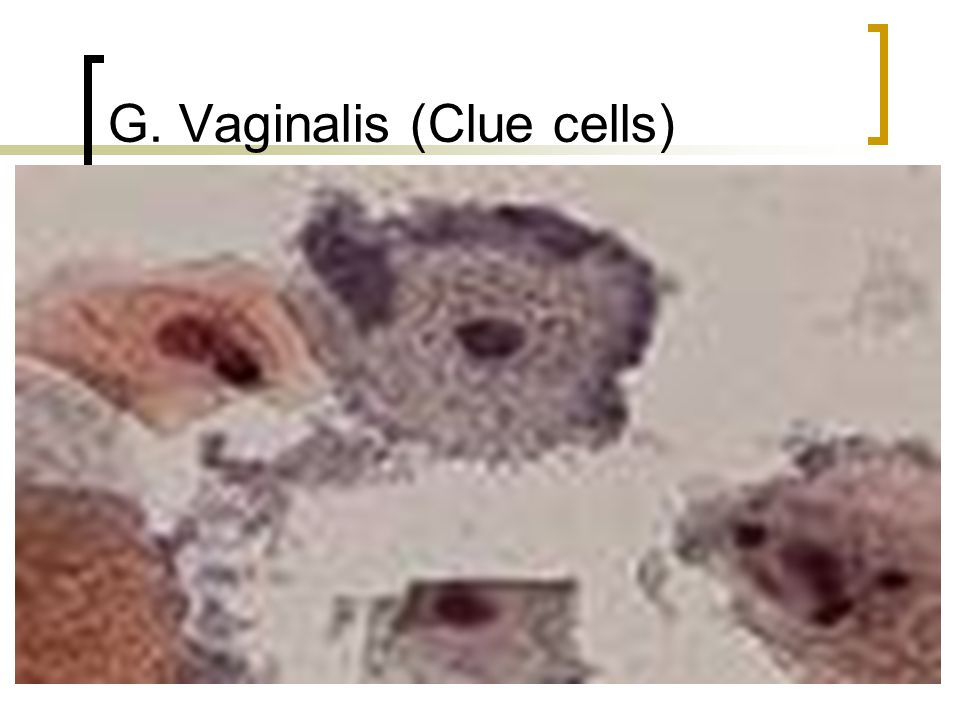 G. Vaginalis (Clue cells)