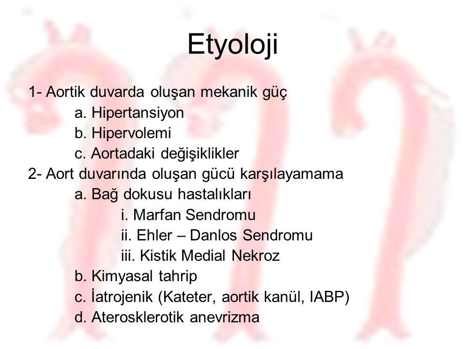 Etyoloji 1- Aortik duvarda oluşan mekanik güç a. Hipertansiyon
