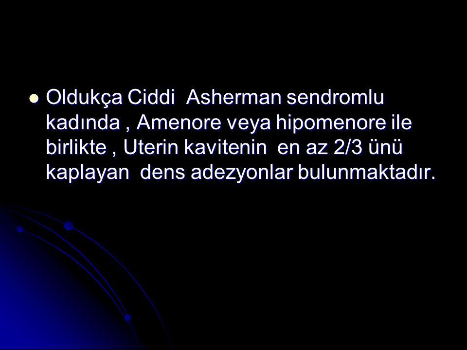 Oldukça Ciddi Asherman sendromlu kadında , Amenore veya hipomenore ile birlikte , Uterin kavitenin en az 2/3 ünü kaplayan dens adezyonlar bulunmaktadır.