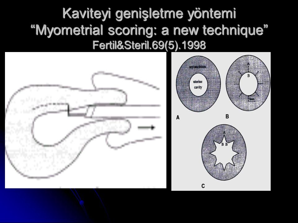 Kaviteyi genişletme yöntemi Myometrial scoring: a new technique Fertil&Steril.69(5).1998