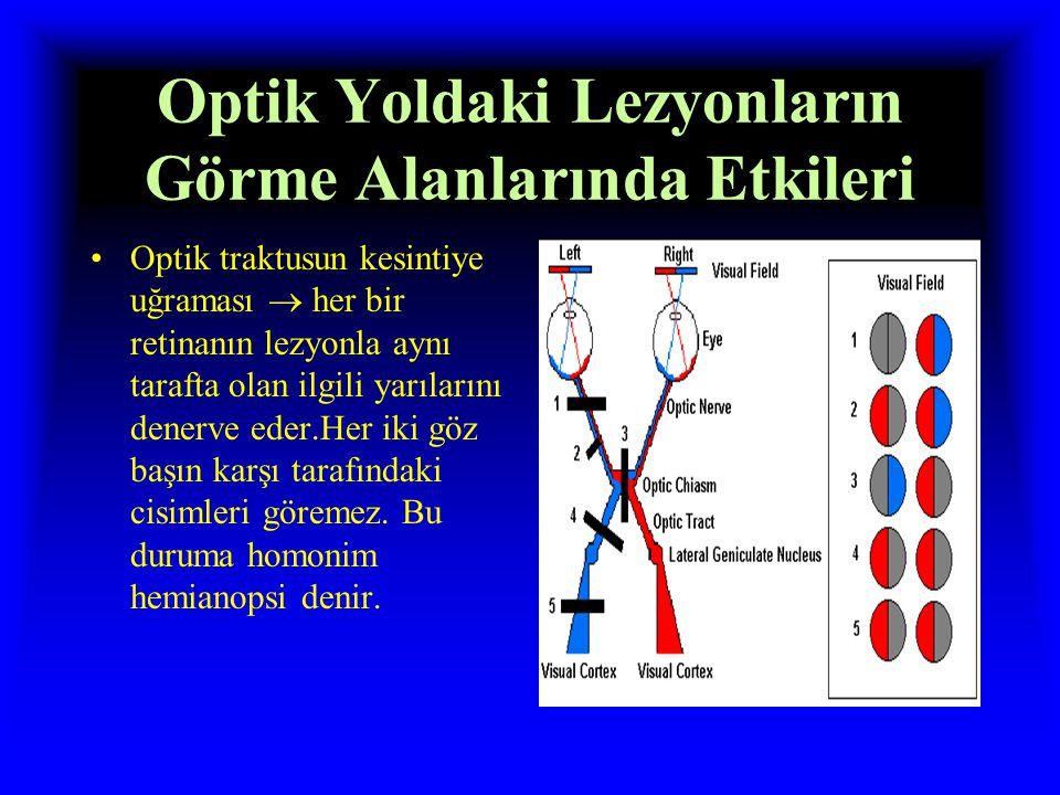 Optik Yoldaki Lezyonların Görme Alanlarında Etkileri