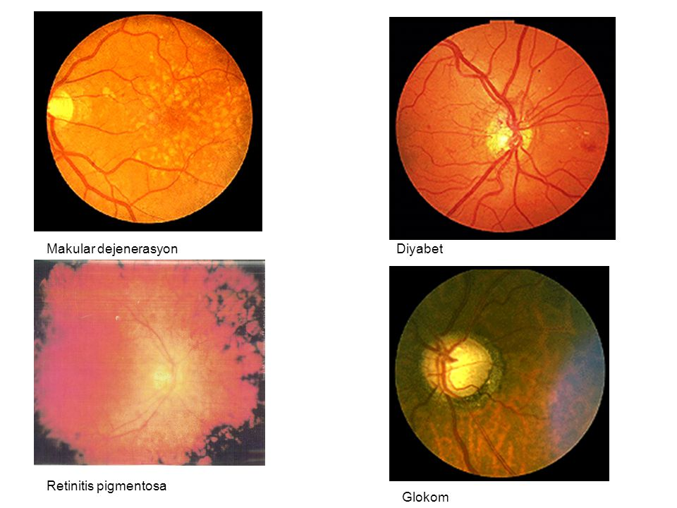 Makular dejenerasyon Diyabet Retinitis pigmentosa Glokom