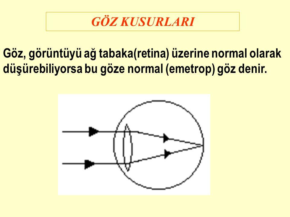 GÖZ KUSURLARI Göz, görüntüyü ağ tabaka(retina) üzerine normal olarak düşürebiliyorsa bu göze normal (emetrop) göz denir.