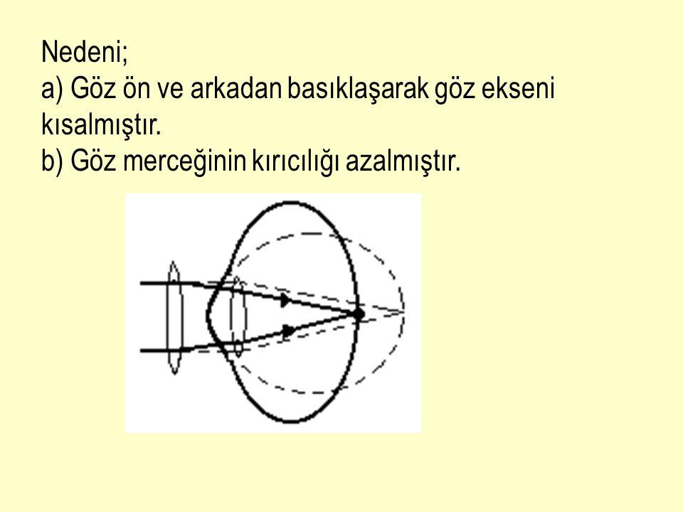 Nedeni; a) Göz ön ve arkadan basıklaşarak göz ekseni kısalmıştır.