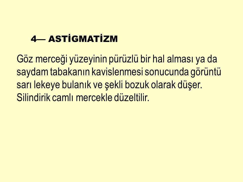 4— ASTİGMATİZM