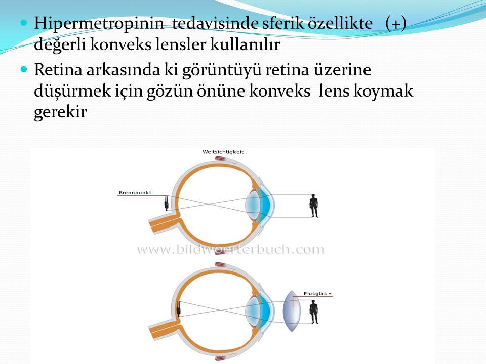Hipermetropinin tedavisinde sferik özellikte (+) değerli konveks lensler kullanılır