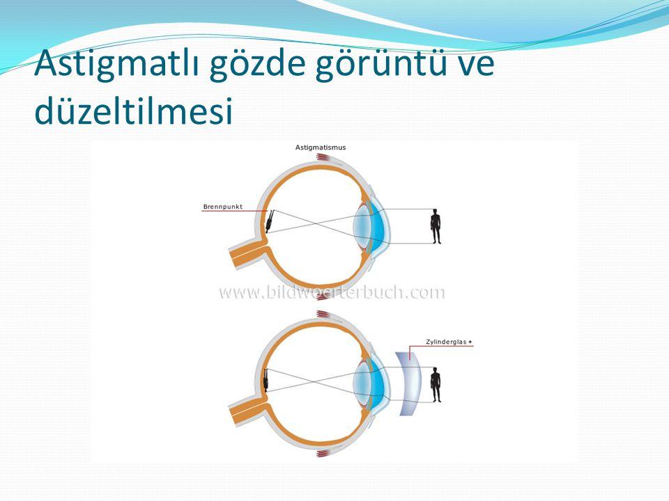 Astigmatlı gözde görüntü ve düzeltilmesi