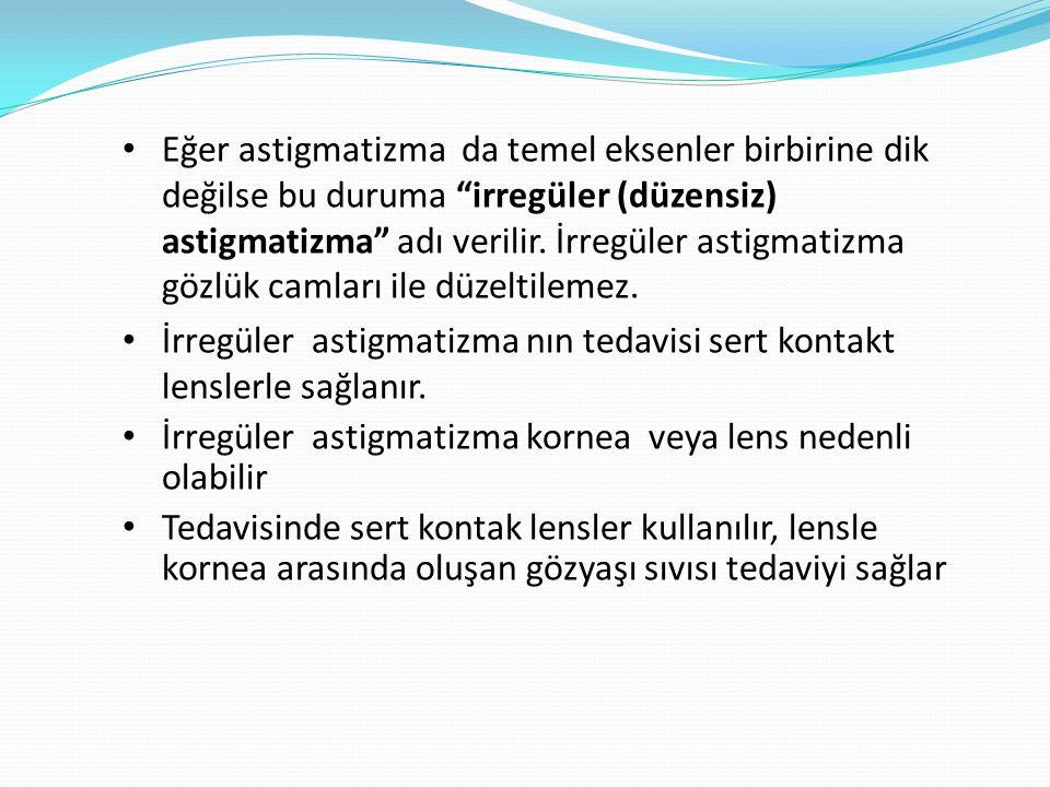 Eğer astigmatizma da temel eksenler birbirine dik değilse bu duruma irregüler (düzensiz) astigmatizma adı verilir. İrregüler astigmatizma gözlük camları ile düzeltilemez.