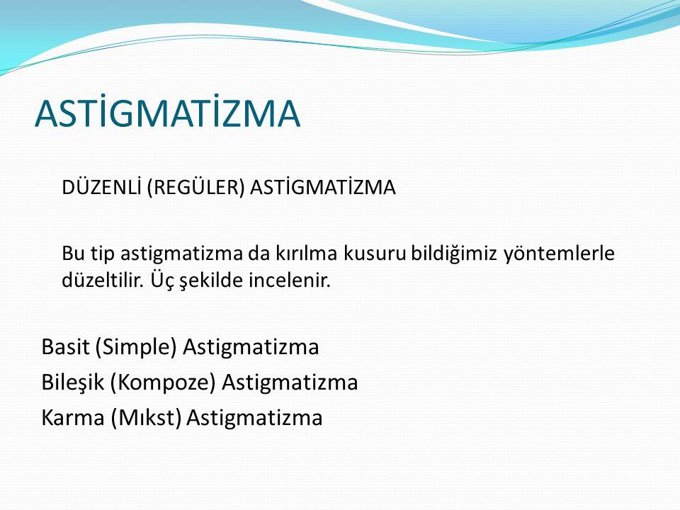 ASTİGMATİZMA Basit (Simple) Astigmatizma