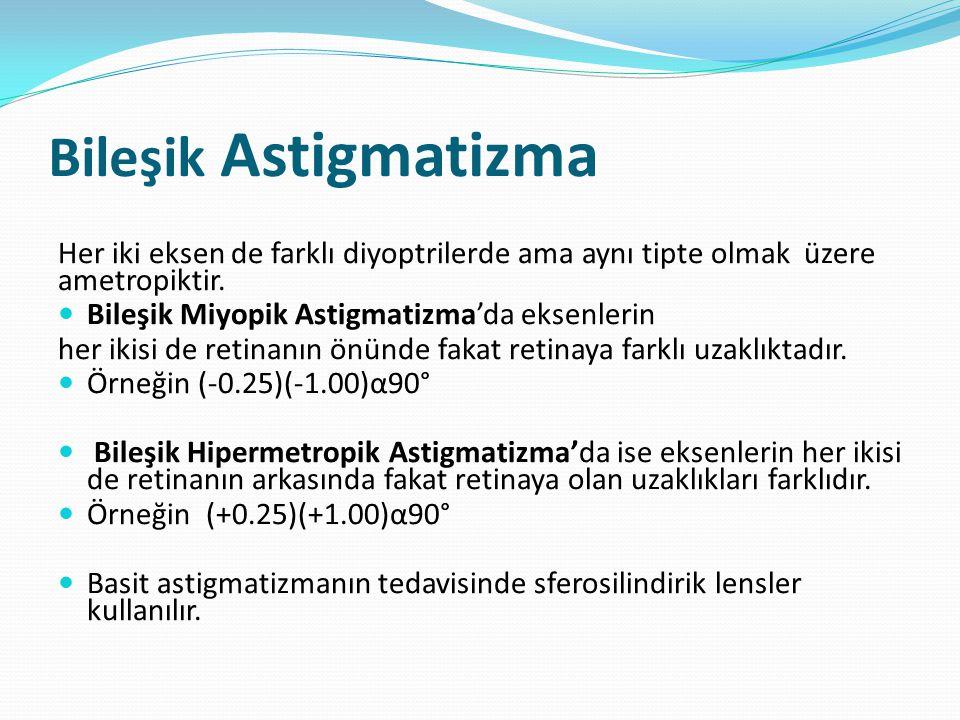 Bileşik Astigmatizma Her iki eksen de farklı diyoptrilerde ama aynı tipte olmak üzere ametropiktir.