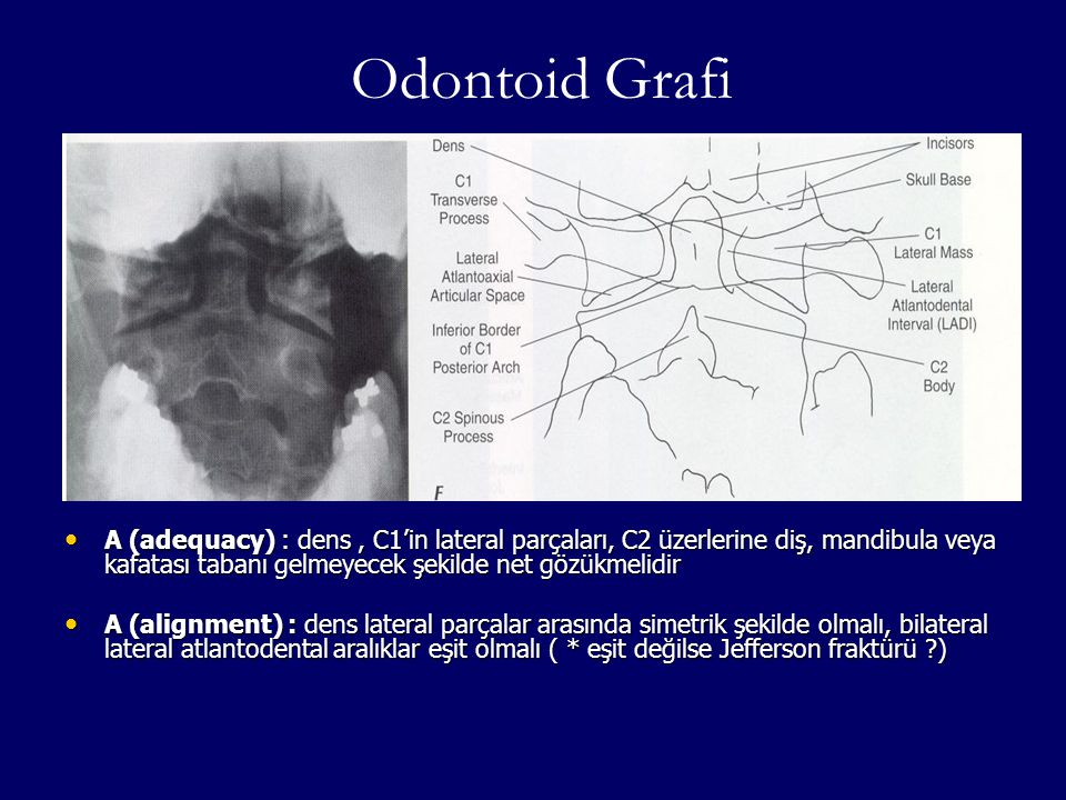 Odontoid Grafi A (adequacy) : dens , C1'in lateral parçaları, C2 üzerlerine diş, mandibula veya kafatası tabanı gelmeyecek şekilde net gözükmelidir.