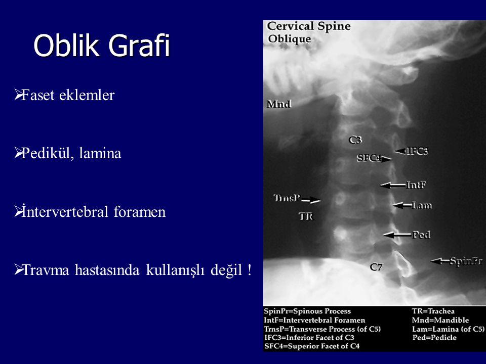 Oblik Grafi Faset eklemler Pedikül, lamina İntervertebral foramen
