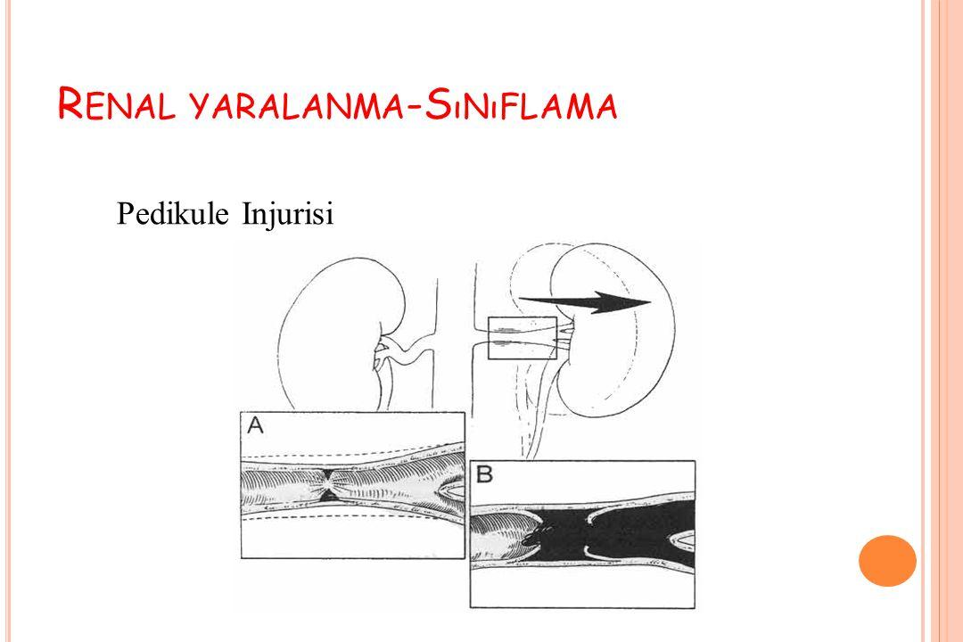 Renal yaralanma-Sınıflama