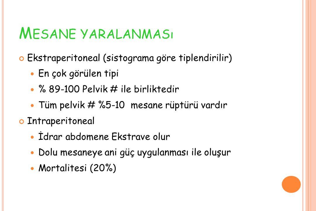 Mesane yaralanması Ekstraperitoneal (sistograma göre tiplendirilir)